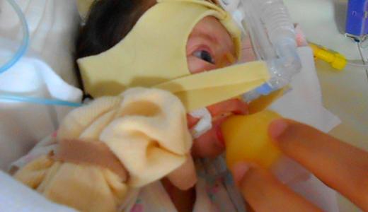 娘の先天性心疾患(重症)の記録 2018年12月