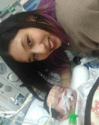 ノーウッド手術の後の人工心肺の後の胸水が引かん微妙な状態