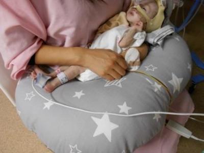 北里病院NICU 看護師 先天性心疾患 ノーウッド手術 グレン手術 フォンタンの会 フォンタン手術 こども医療センター