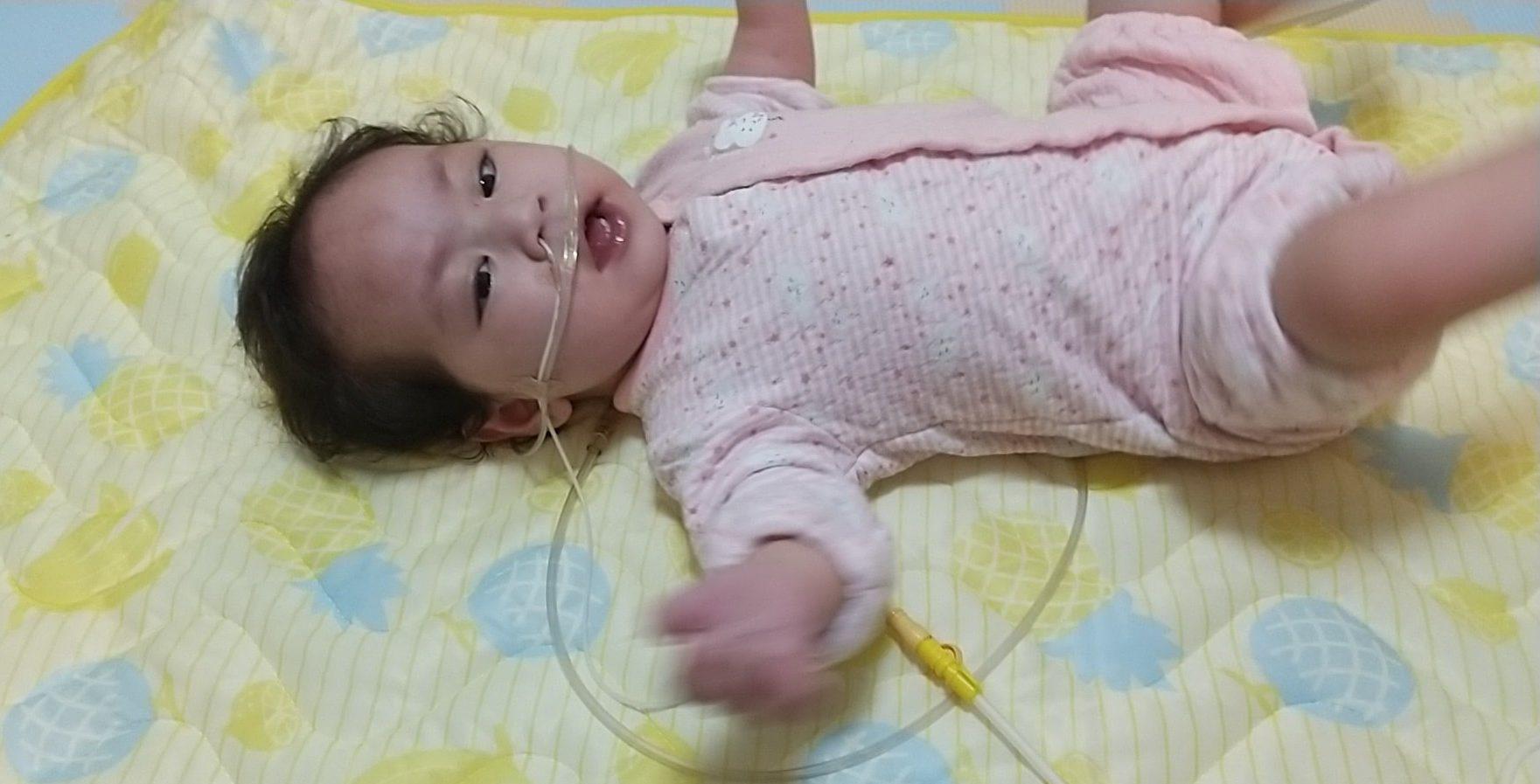 娘の先天性心疾患(重症)の記録 2021年2月